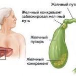Заболеваемость печеночной коликой